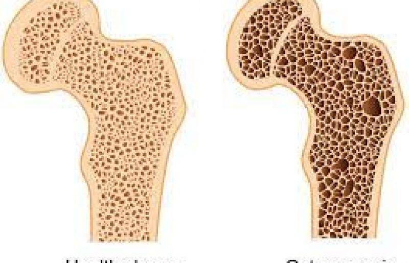 אוסטיאופורוזיס – אודות המחלה