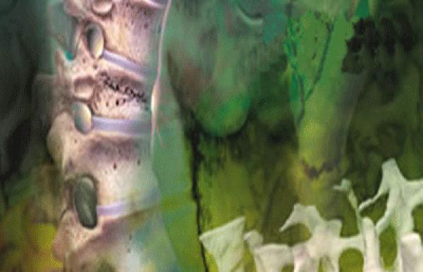 מה זה אוסטאופורוזיס או בריחת סידן