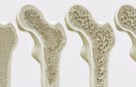 בריחת סידן – בדיקת צפיפות עצם