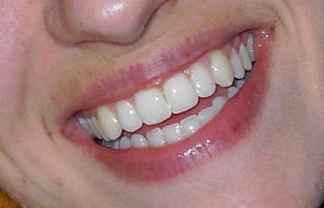 חיוך מושלם עם שיניים לבנות